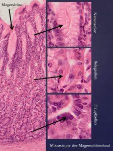 Helicobacter Pylori - Fluch oder Segen? Warum eine individuelle Ernährung nachhaltig hilft